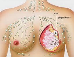 linfoma hodkins